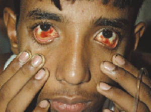 A Bangladeshi victim of dengue hemmorhagic fever (DHF)